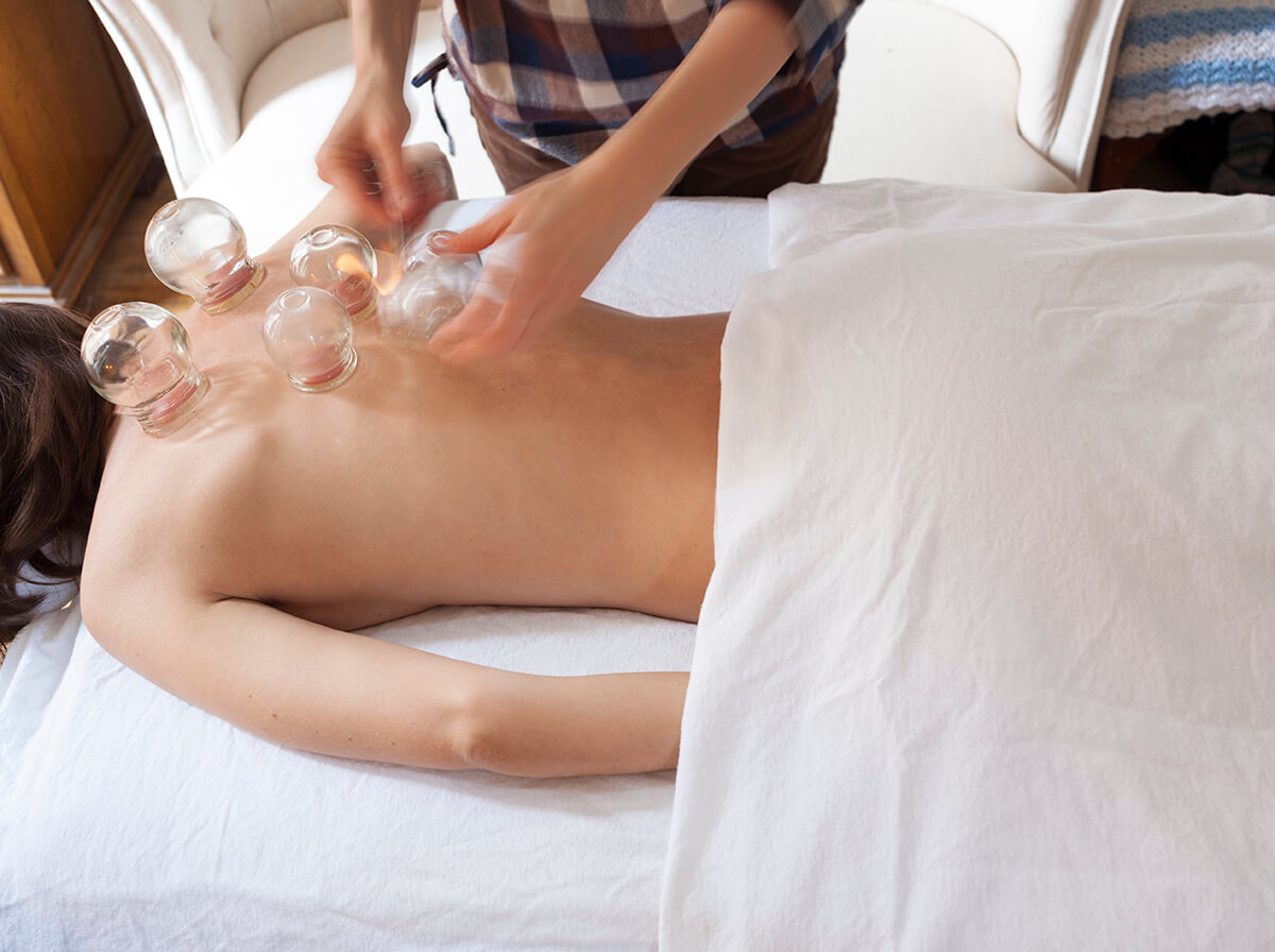 Acupuncture Cupping Hilary Leitner